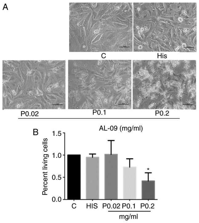 Analysis of gene expression profiling of amyloidogenic immunoglobulin light-chains on cultured rat cardiomyocytes